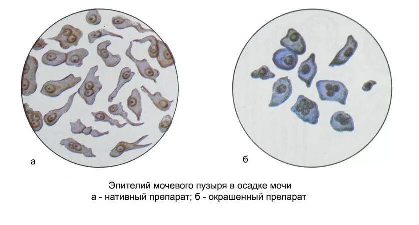 Плоский эпителий в моче у ребенка