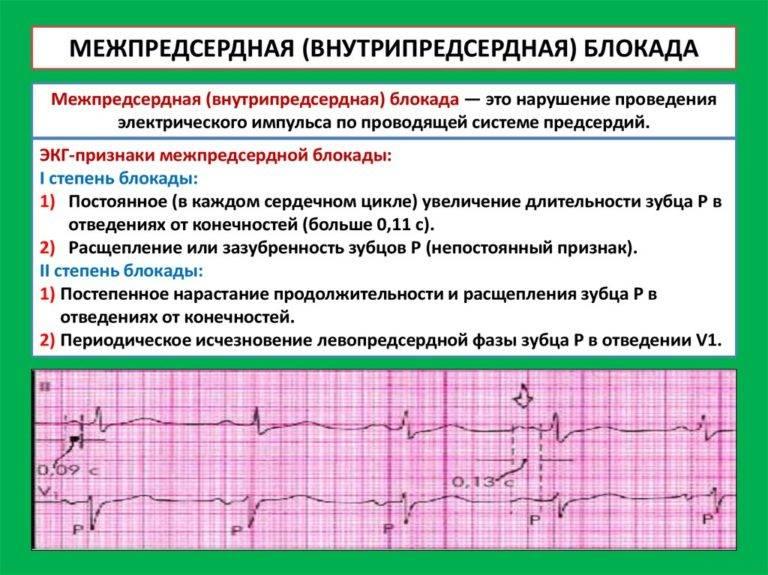 Нарушение внутрижелудочковой проводимости сердца: что это такое, опасно ли, симптомы у детей