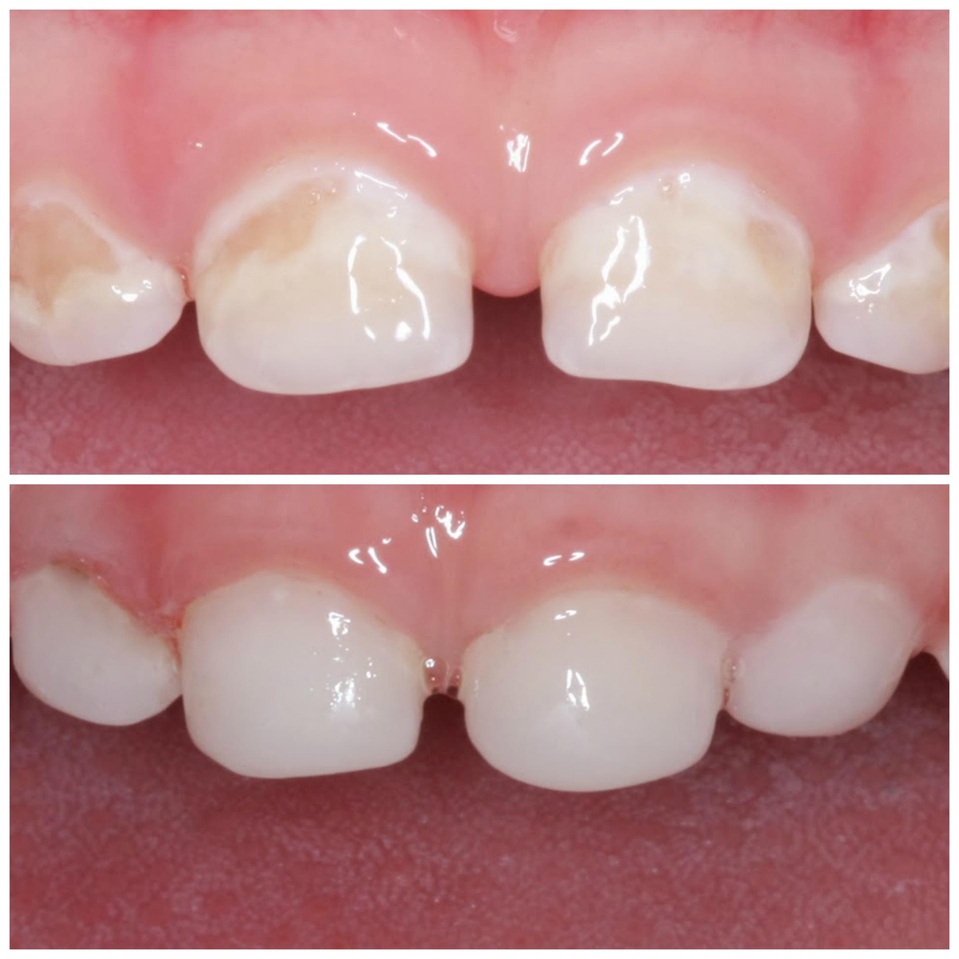 Серебрение молочных зубов у детей: суть процедуры, показания и противопоказания