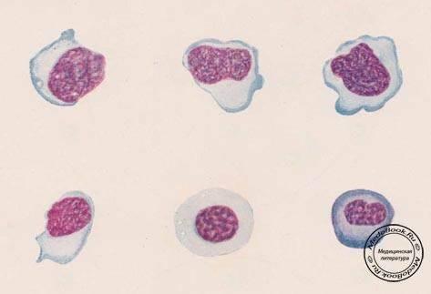 Мононуклеары в общем анализе крови как обозначаются