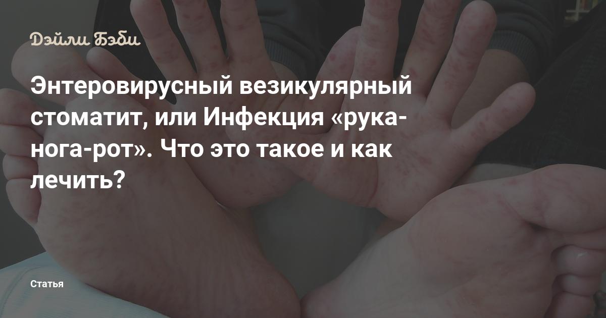 ✅ вирус рука нога рот как лечить у детей - лор.net