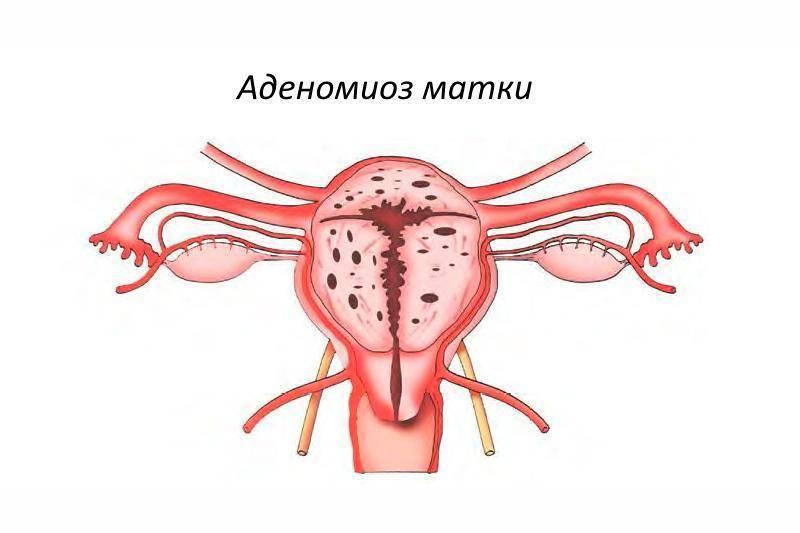 Аденомиоз и беременность - особенности протекания, прогноз и другие особенности + отзывы