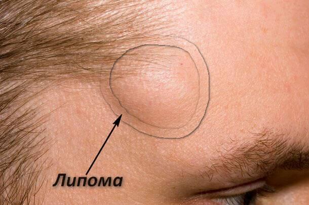 Виды и причины появления шишек на голове в волосах