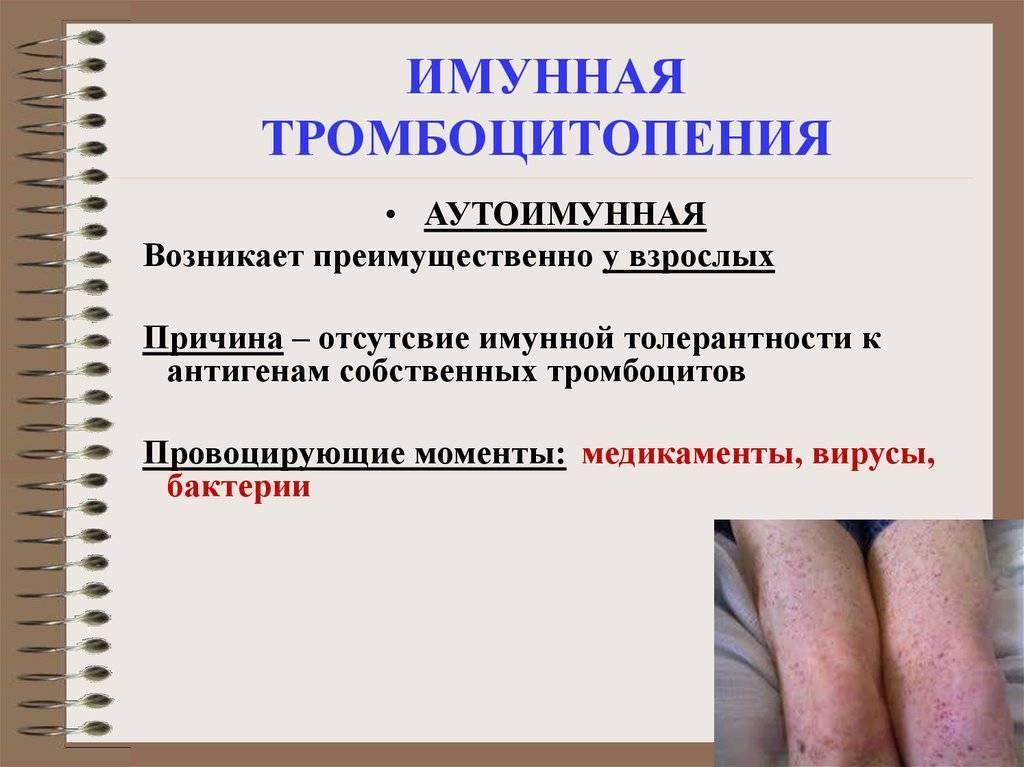 Тромбоцитопения у детей. причины возникновения тромбоцитопенического пурпура у детей и его лечение - советник по медицине