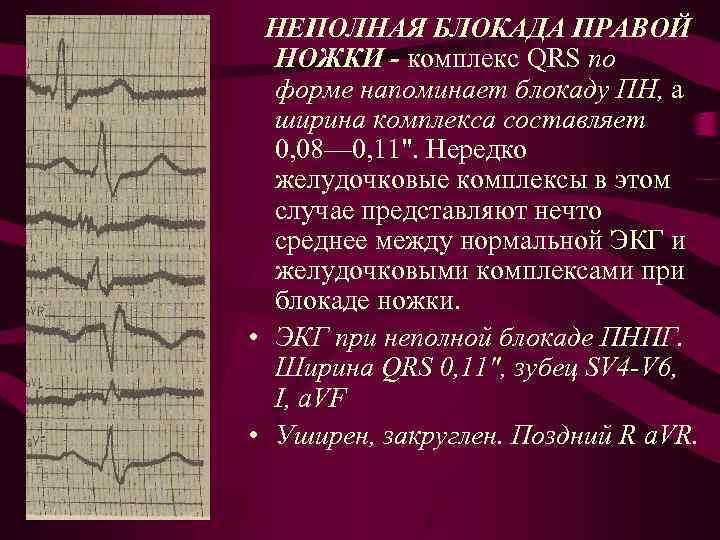 Что такое нбпнпг в кардиологии у ребенка