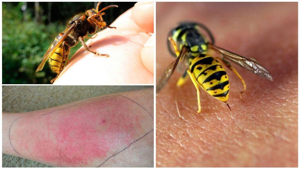 Ребёнка укусила оса - что делать: первая помощь, правила + комаровский