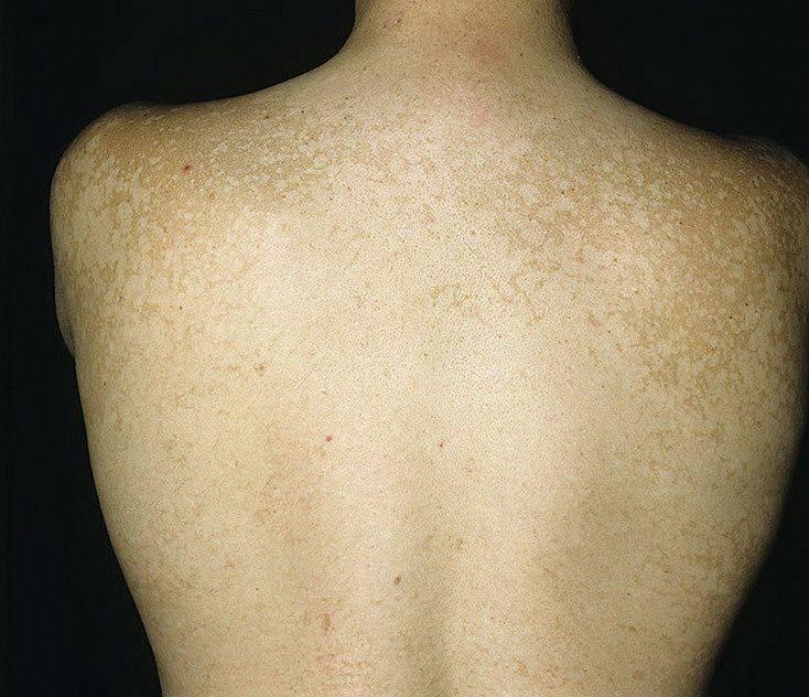 Лишай у ребенка: 6 фото с описанием симптомов, признаки и лечение