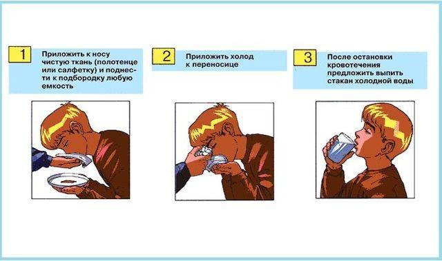 Кровотечение из носа у детей: причины и лечение, первая помощь