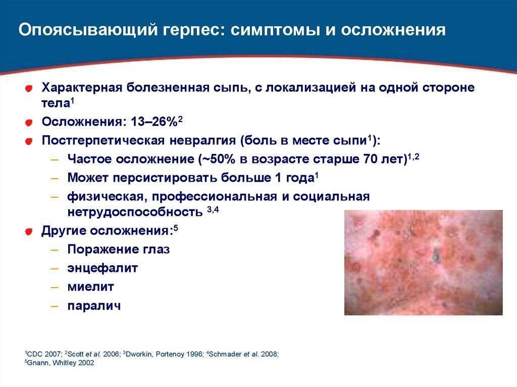 Опоясывающий лишай (герпес): симптомы, лечение, фото