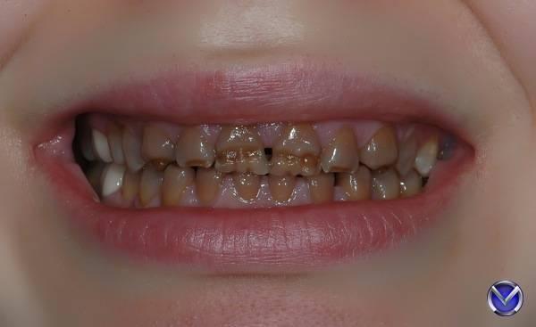 Почему у ребенка растут кривые зубы