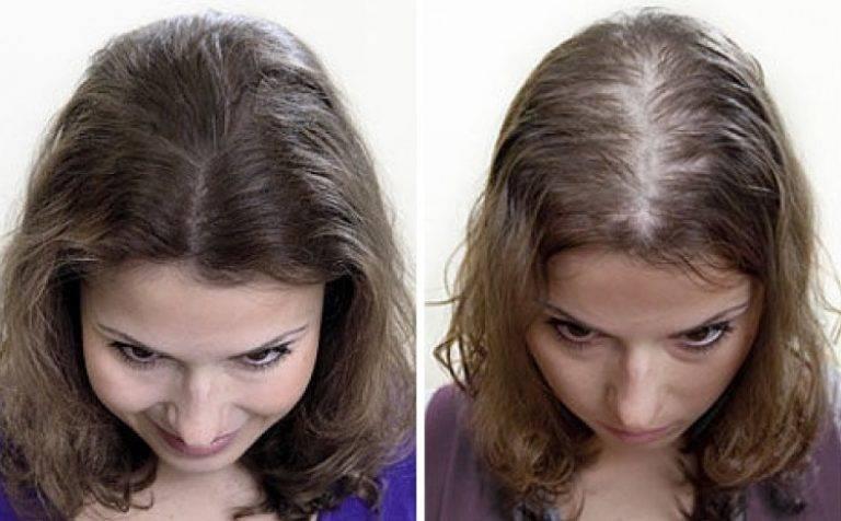 Почему у ребенка выпадают волосы?