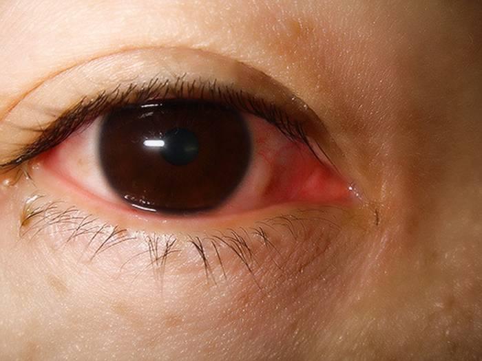 Воспалился глаз чем лечить в домашних условиях