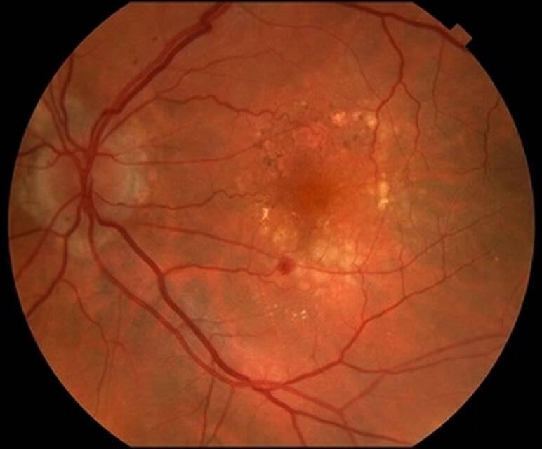 Что такое ангиопатия сетчатки глаз у ребенка, как лечится заболевание? проблемы с глазами у малышей — это очень серьёзно! что такое ангиопатия сетчатки у грудничка ангиопатия у грудничка.