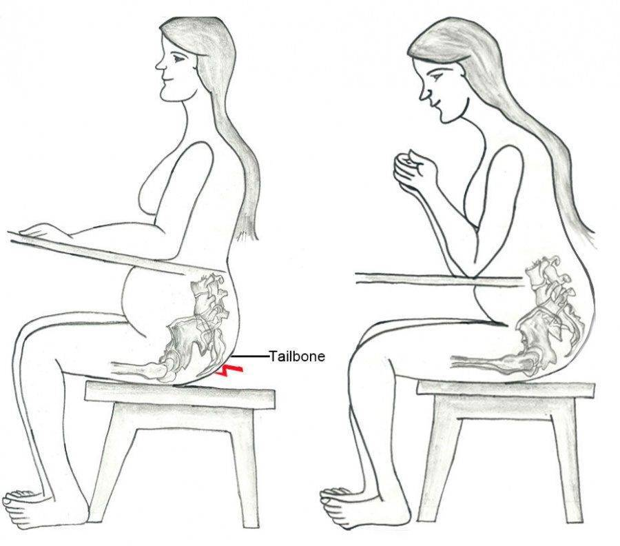 Почему возникают боли в крестце до менструации