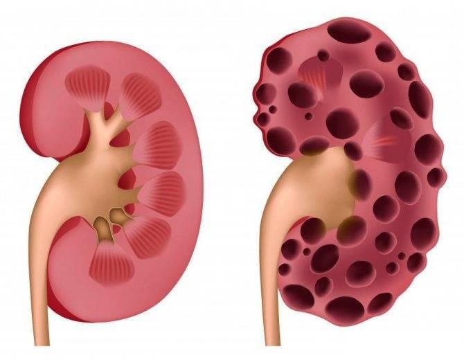 Гипоплазия почки (правой и левой) у ребенка: как вырастить почку