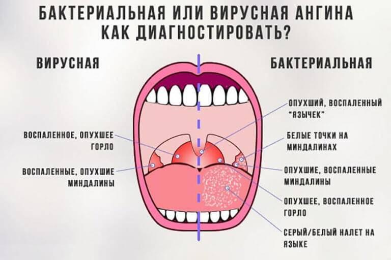 Красное горло у грудничка: чем лечить, ангина или режутся зубы