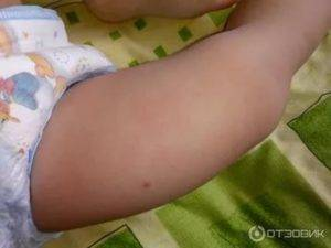 Болит ножка после прививки акдс комаровский