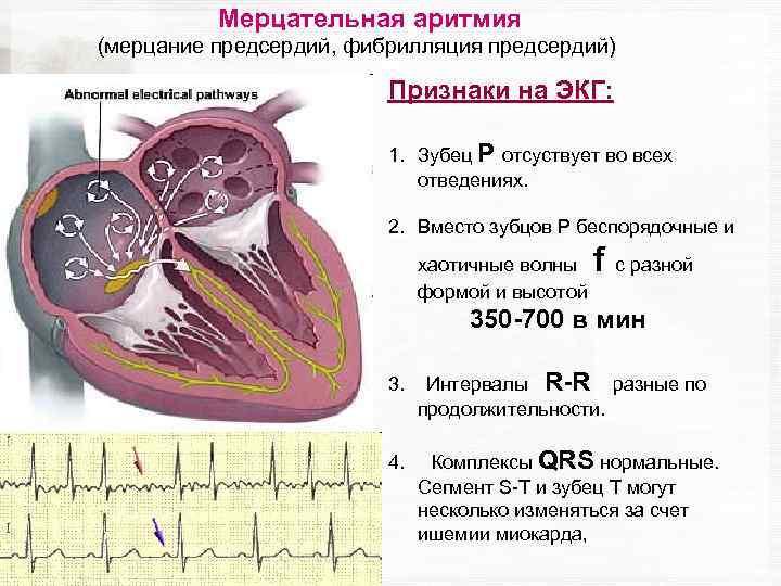 Синусовая аритмия у детей и подростков: причины нарушения ритма сердца, норма на экг, профилактика