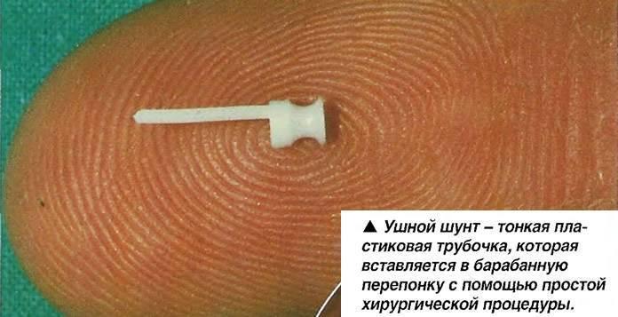 Шунтирование ушей у детей