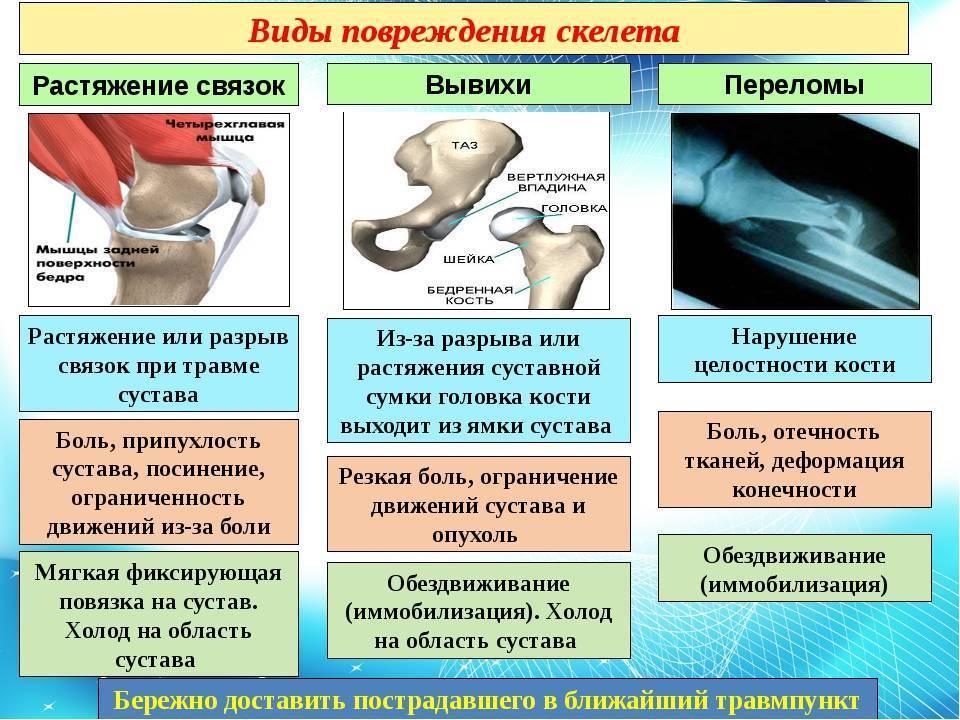 Перелом у ребенка: разновидности и симптомы, особенности лечения последствий детских травм
