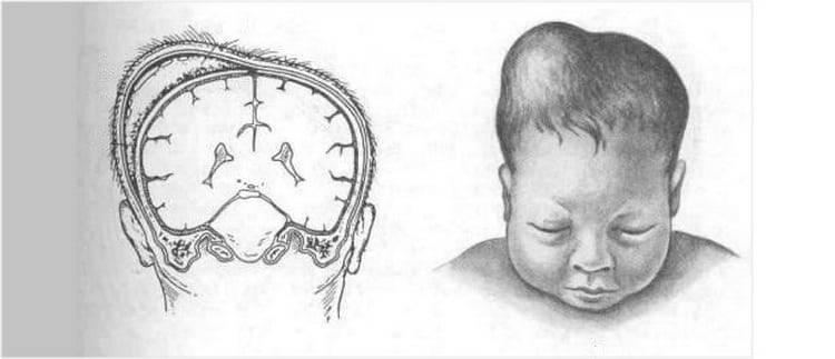 Перелом черепа у ребенка: последствия, симптомы и схема лечения для грудничка и старше