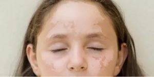 Почему появились белые пятна на лице у ребенка, как от них избавиться?
