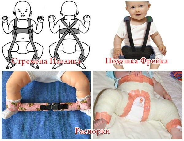 Полный обзор дисплазии тазобедренных суставов у новорожденных и грудничков