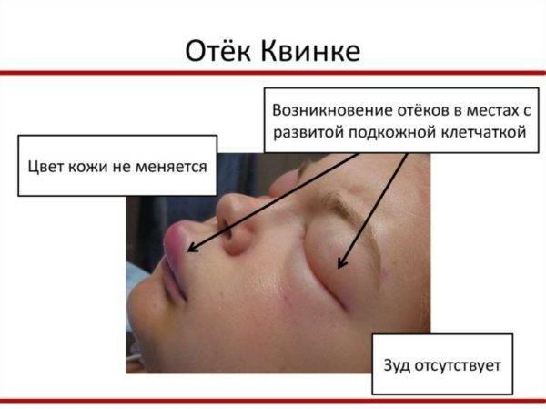 Отек квинке - симптомы и лечение у детей и взрослых