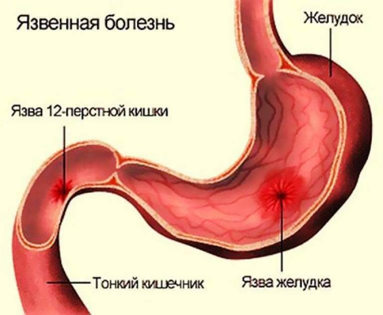 Язвы желудка и двенадцатиперстной кишки. причины, симптомы и лечение язвенной болезни.